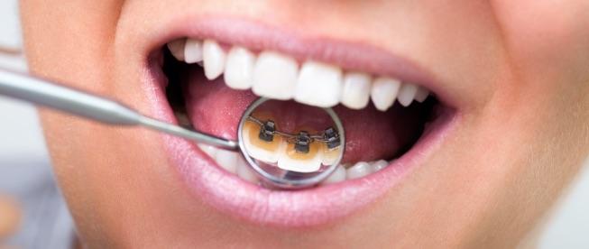Clinica CBO | Ortodonzia linguale