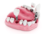 quali sono i migliori impianti dentali 1