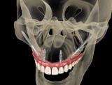 quali sono i migliori impianti dentali 2